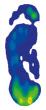 Mesure de la pression Relief Contour Insole dans une chaussure  Relief Dual