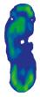 Relief Contour Insole dans une chaussure MedSurg Pro