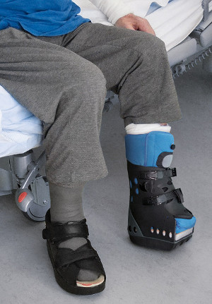 DARCO's Body Armor Pro Term is an interim orthosis for use after Chopart and Lisfranc amputations