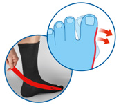 Special Purpose Sock with adjustable strap for protecting Hallux Valgus corrective surgery