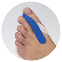 Use MECRON ReadyDressment Strips to fix the toe separator