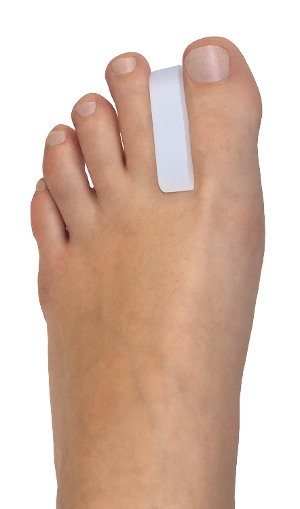 Toe Separator MA Spacer (MIS Akin Spacer). Ensures the surgical outcome after MIS Akin surgery